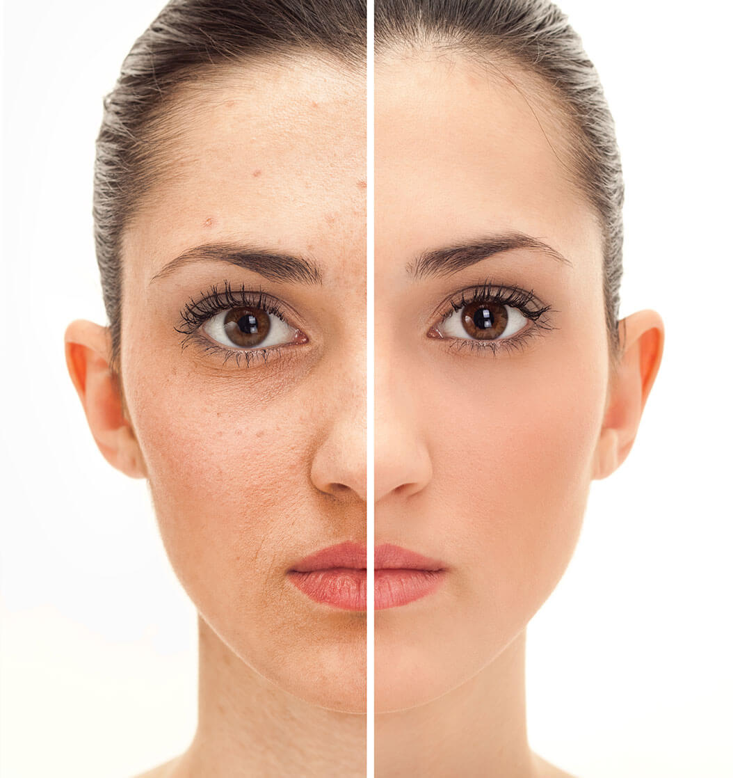 Ultrasonic deep cleaning facial Las Vegas